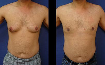 Men Get Gynecomastia