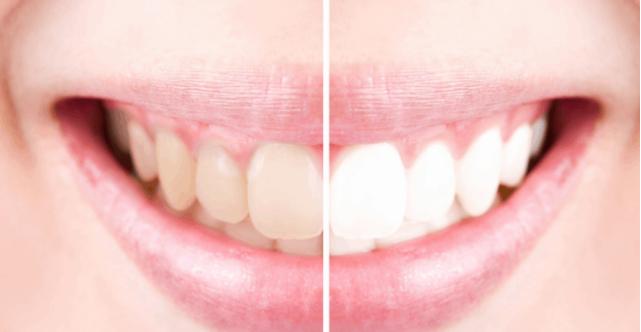 delicate teeth